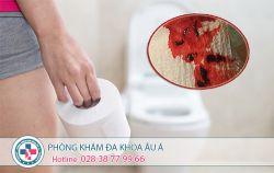 6 căn bệnh gây đi cầu ra máu và cách chữa